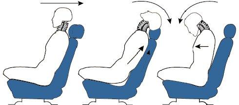 Gối tựa đầu trên xe ô tô giúp giảm chấn thương vùng cổ cho người ngồi trên xe trong các tình huống va chạm.